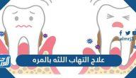 علاج التهاب اللثه بالمره
