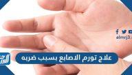 علاج تورم الاصابع بسبب ضربه وكيفية الوقاية من تورم الأصابع