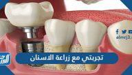 تجربتي مع زراعة الاسنان والفحوصات اللازمة قبل القيام بها