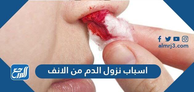 اسباب نزول الدم من الانف