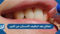 نصائح بعد تنظيف الاسنان من الجير لابتسامة أفضل