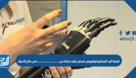 تقنية اليد الصناعية وتعويض شخص فقد ذراعه من ……… في علم الأحياء