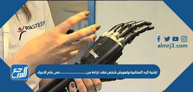 تقنية اليد الصناعية وتعويض شخص فقد ذراعه من ......... في علم الأحياء