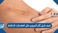 كيف أزيل آثار الجروح مثل العلامات الداكنة
