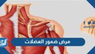 ما هو مرض ضمور العضلات الشوكي