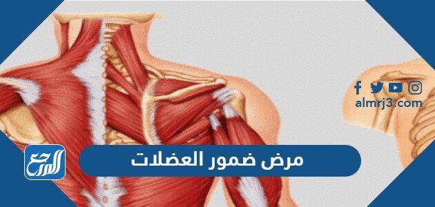 مرض ضمور العضلات