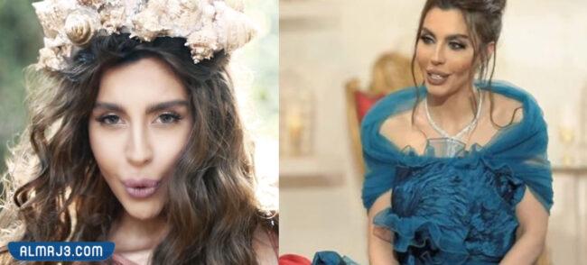 ليلى اسكندر قبل وبعد التجميل
