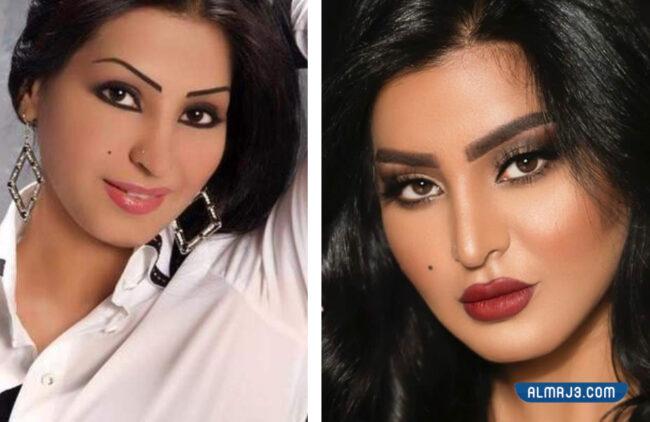 صور ريم عبدالله قبل وبعد