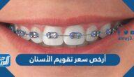 أرخص سعر تقويم الأسنان 2021