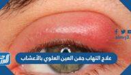 علاج التهاب جفن العين العلوي بالأعشاب
