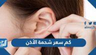 كم سعر شحمة الأذن