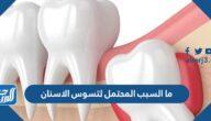 ما السبب المحتمل لتسوس الاسنان